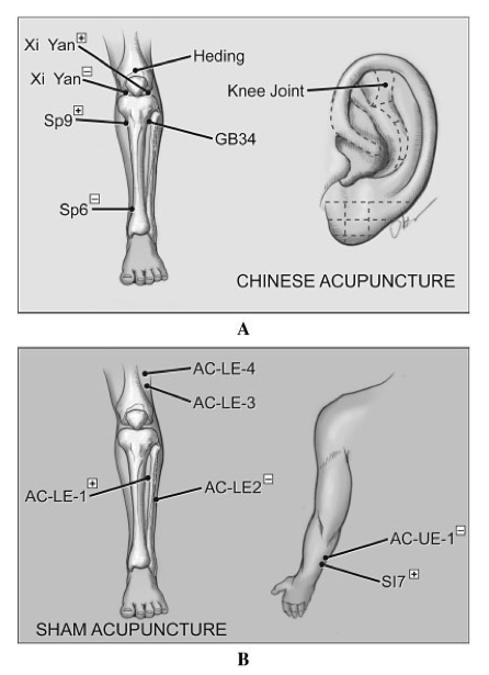 Acupuncture, Science based medicine, and UFOs | A Better Way